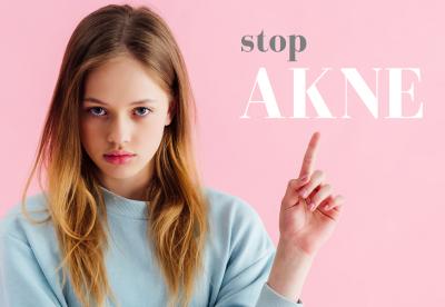 AKNE – reagirajte na vrijeme i spriječite ožiljke